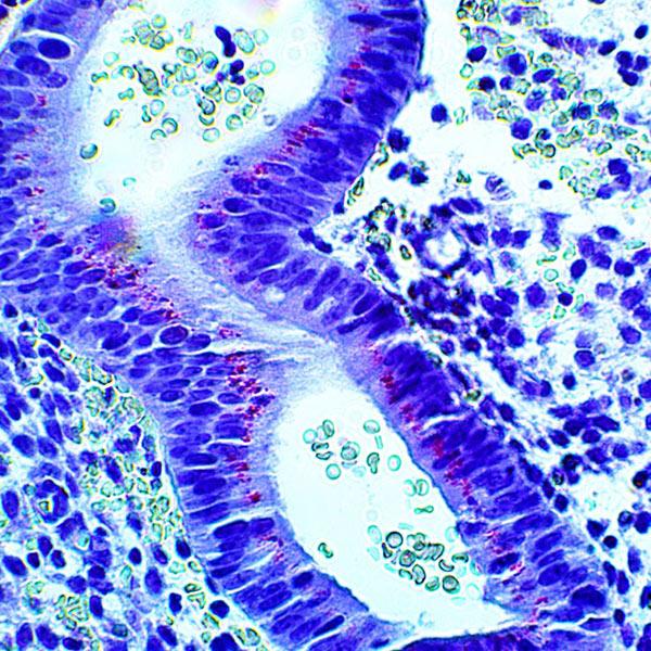 IHC – HHV-6 in Endometrium