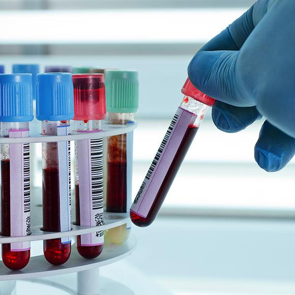 HHV-6 PCR DNA - Quantitative Analysis